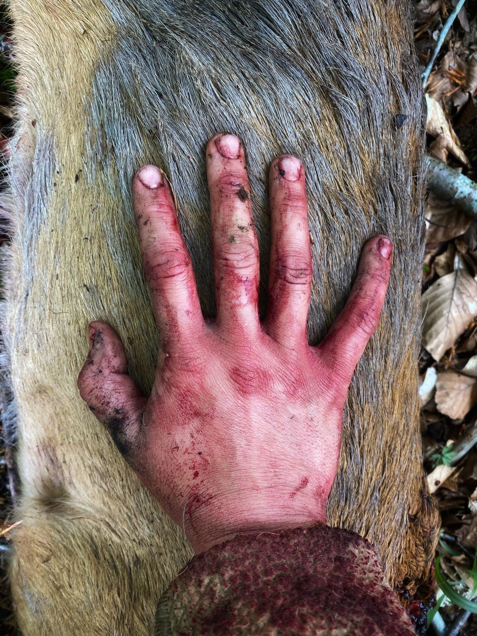 blodig hånd